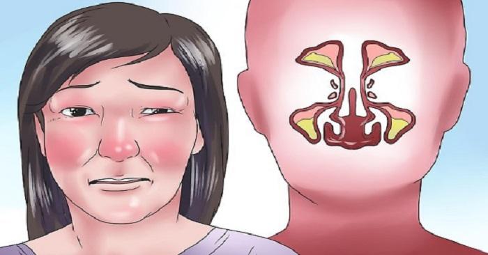 täppt i vänster näsborre