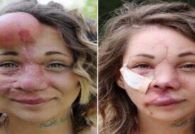 """Läkarna syr in """"ballonger"""" i hennes hud. Men se hur hon ser ut idag!"""