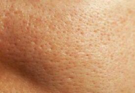 Har du stora porer och pormaskar? Då ska du tänka på de HÄR 6 sakerna!