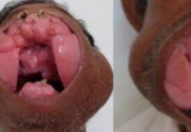 Läkarna tog bort den stora utväxten från mannens läppar. Idag ser han ser helt annorlunda ut!