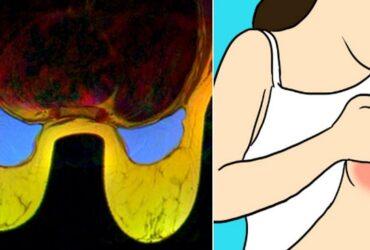 Om du har ont i brösten bör du ALDRIG ignorera smärtan! Det HÄR är varför!
