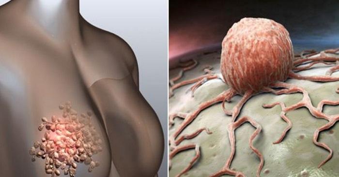 5 varningssignaler om bröstcancer som många kvinnor ignorerar! Viktigt!