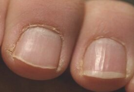Om du ser DETTA på dina naglar, borde du uppsöka läkare direkt!