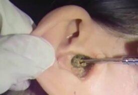 Kvinnan har inte rensat öronen på 20 år – se vad läkaren då drar ut!