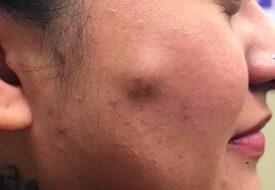 Kvinnan har stor en cysta på kinden – men när den kläms är det redan för sent!