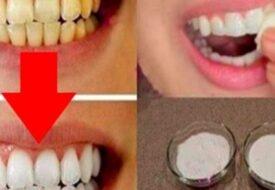 Tandläkarna vill att detta ska vara hemligt – så får du vita tänder permanent!