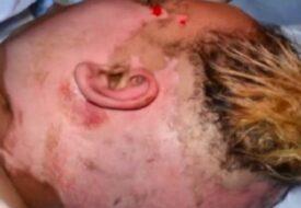 Kvinnan blev misshandlad och bränd av sin man. Men se hur hon ser ut idag!