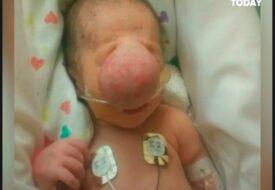 Babyn har en gigantisk knöl mitt i ansiktet. Hur han ser ut idag rör hela världen till tårar!