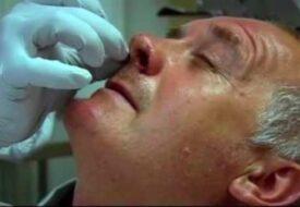 Mannen har en av GIGANTISK snorkråka i näsan – se när läkaren drar ut den!