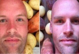 Han åt potatis varje dag i 1 år. Det som hände med hans kropp chockar forskare!
