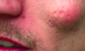 Mannens har en stor knöl i ansiktet – då läkaren klämmer ut något HEMSKT!