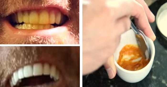 """Den här mannen har ett enormt enkelt knep för tandblekning. Allt du behöver är en """"tandkräm"""" med en hemlig ingrediens!"""