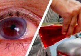 Kasta dina glasögon! Drick den HÄR ingrediensen så förbättras din syn direkt!