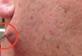 Mannen rakade bort allt sitt skägg för första gången – då upptäckte han något äckligt