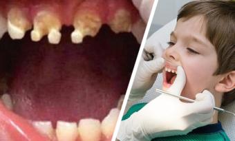 Nu varnar Tandläkare – Ge ALDRIG det här till era barn!