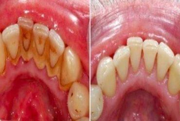 Här är det enkla husmorsknepet som gör att du slipper tandläkarstolen!