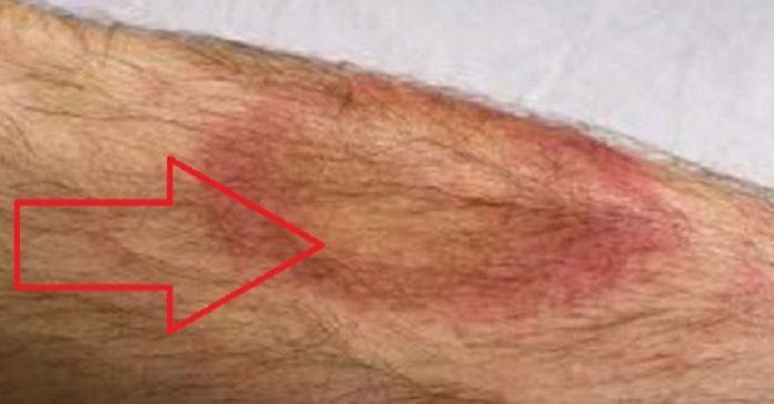 Läkarna blev förvånade efter att mannen dog bara några dagar efter att han fått det HÄR märket på armen!