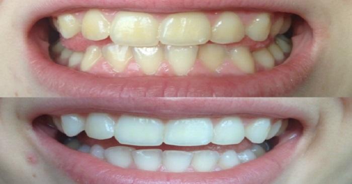 GARANTERAT! Blek dina gula tänder på mindre än 2 minuter!