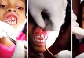Den lilla flickan klagade på att det gjorde ont i tänderna. Det tandläkaren hittade är HEMSKT!