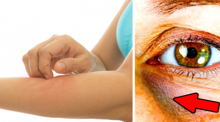Du kan ha högt blodsocker – Dessa 12 varningstecken måste du hålla koll på!