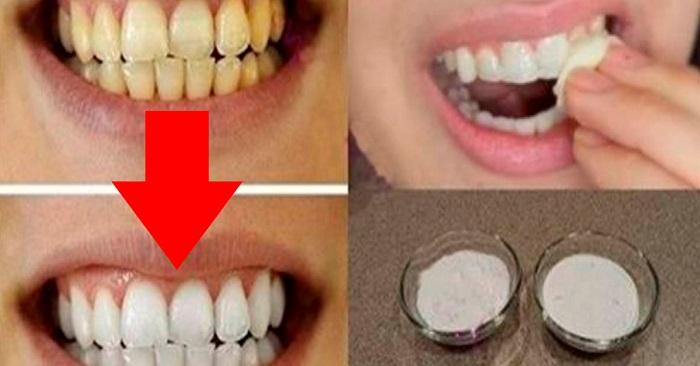Med dessa två billiga ingredienser, får du vitare tänder på bara 2 minuter!