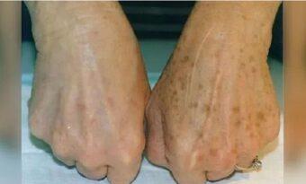 Har du leverfläckar på händerna? Med detta enkla knep kan du snabbt ta bort dem!