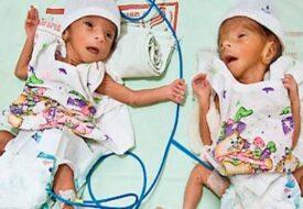Världens äldsta mamma till tvillingar fick barn 70 år gammal. Sex år senare kämpar hon för att lyckas!