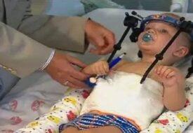 Den lilla pojkens huvud rycktes av i en bilolycka! Men se hur han ser ut idag!