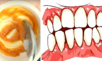 Läk ditt svullna tandkött och blek tänderna med den HÄR hemmagjorda tandkrämen!