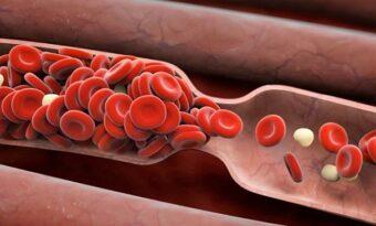 6 tecken kroppen använder för att varna dig att en blodpropp är på väg – Detta bör du inte förbise!