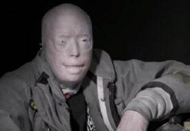 Han betalade 950 000 euro för en 26 timmars operation! Se hur hans ansikte ser ut idag!