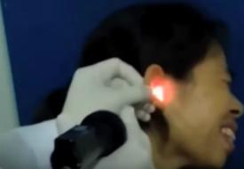 Kvinnan kommer till doktorn med en hemsk smärta i örat! Vad de drar ut chockar ALLA!