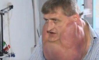 Mannen vägrade gå till sjukhuset. Flera år senare är läkarna CHOCKADE över hur han ser ut!