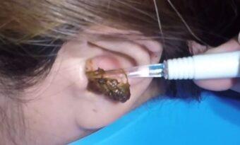 Flickans öra är igentäppt – läkaren får en chock när han ser varför