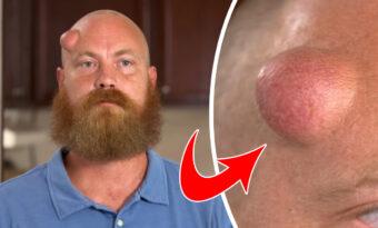 Mannen har haft en knöl i pannan i 18 år – kolla nu när innehållet sprutar ut