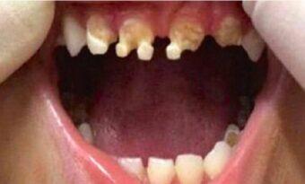 Tandläkare varnar föräldrar! Ge ALDRIG det här till era barn! Tänderna på den 3-åriga pojken ruttnade!