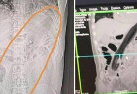 Mannen hade ont och var förstoppad. Det läkarna såg på röntgenplåtarna och hittade i hans kropp chockar ALLA!