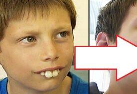 Pojken blev mobbad för sina tänder varje dag men familjen hade inte råd att låta honom gå till tandläkaren. Men se vad som hände DÅ!