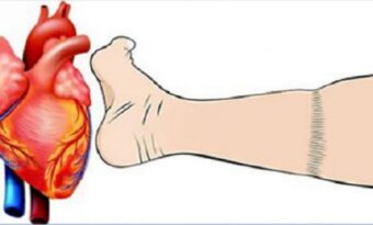 4 viktiga saker om hjärtinfarkt du behöver veta!