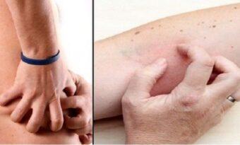 De 4 symptomen till njurskador du mest sannolikt ignorerar!