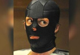 Modellen överlevde brandskadorna: 2 år senare tar hon av masken och avslöjar en STOR hemlighet!