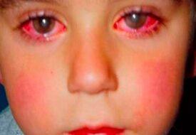 Pojken förlorade 75% av sin syn på grund av en leksak – som finns i tusentals svenska hem!!