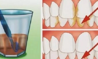 Så här får du skinande rena tänder och en fräsch andedräkt på bara några dagar!