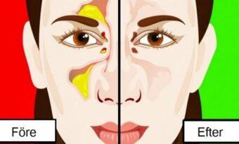 Så här blir du av med problemet med täppt näsa på bara några sekunder!