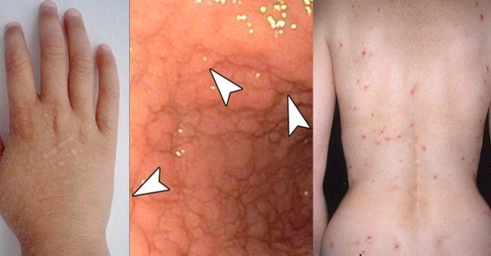 Det här är varningssignalerna för glutenintolerans du MÅSTE känna till!